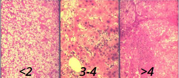 Хронический вирусный гепатит в без дельта агента