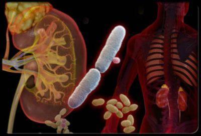 Инфекционное заболевание почек