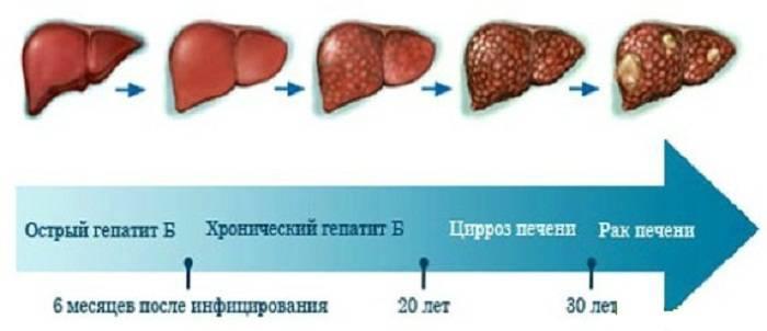 Отказ печени: симптомы и причины недуга