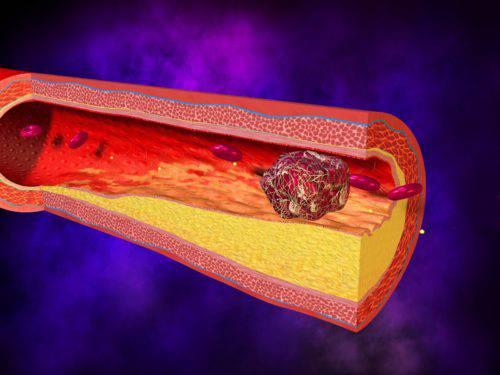 Риск образования тромбов