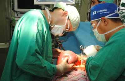 Операция для лечения органа