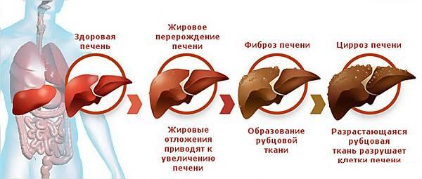 Перерождение печени