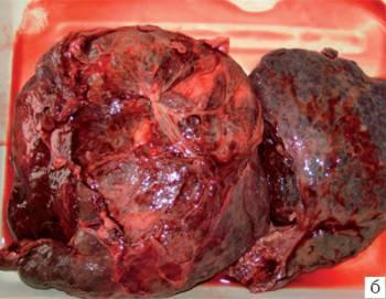 Кавернозная гемангиома печени: что это такое, симптомы и лечение