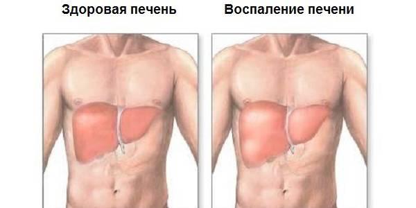 Пример больного органа