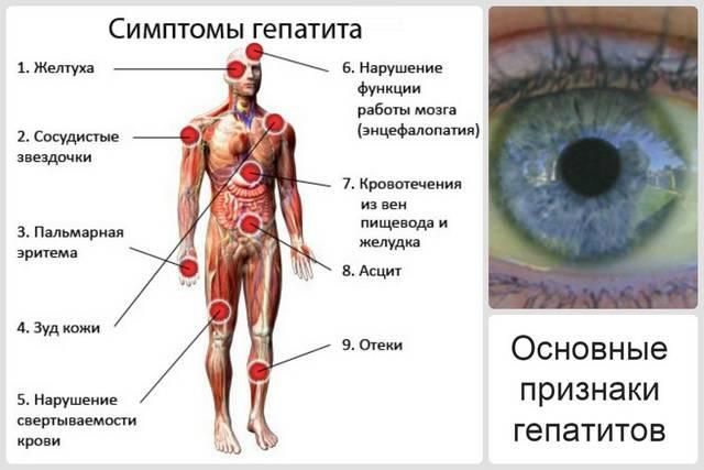 Основные признаки гепатита