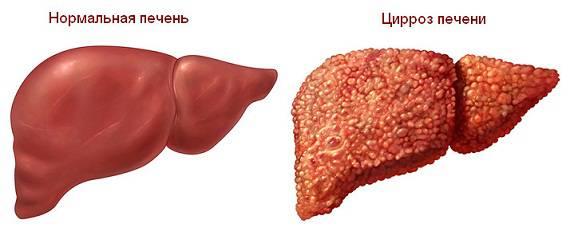 Здоровая печень и орган, пораженный церрозом