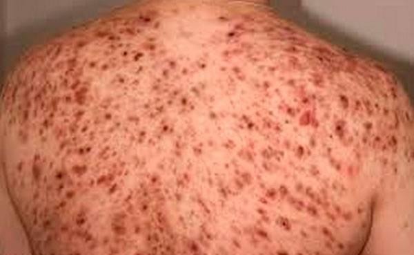 Появление угрей на спине