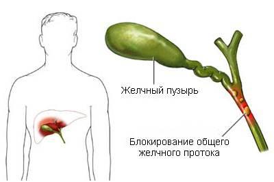 холестаз