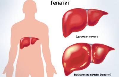 Заболевание железы
