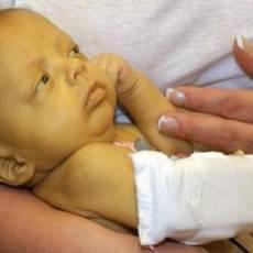 Травма печени у детей